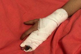 Может ли инспектор ГИБДД оштрафовать водителя, управляющего машиной со сломанной рукой или ногой